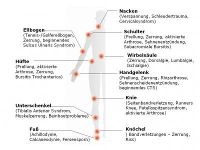 Beispiel an verschiedenen Arten von Schmerzen die mit REPULS behandelt werden können.